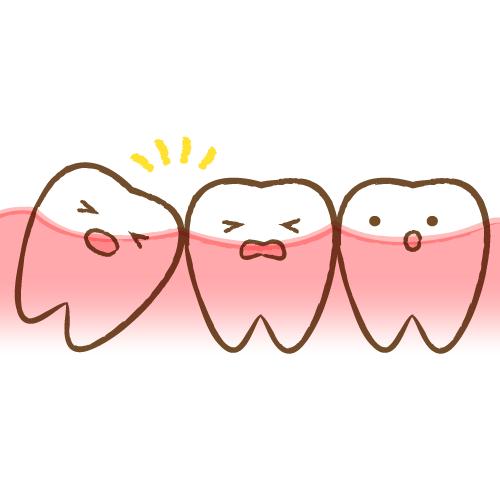 親知らず 抜歯 入院